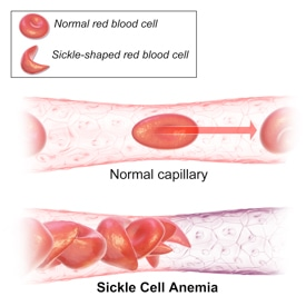 Animal Models of Sickle Cell Anaemia