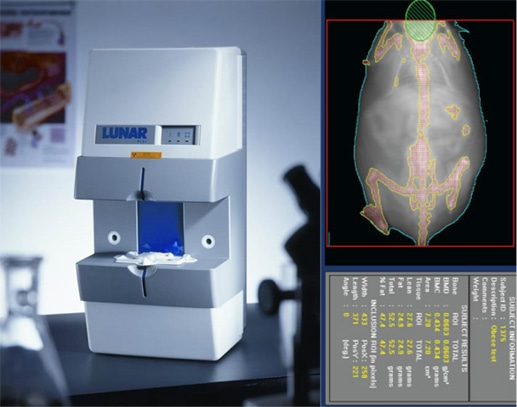 Body Composition Analysis of Obesity