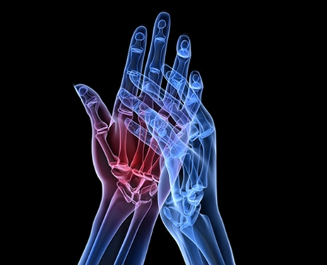 Preclinical Animal Studies for Rheumatoid Arthritis